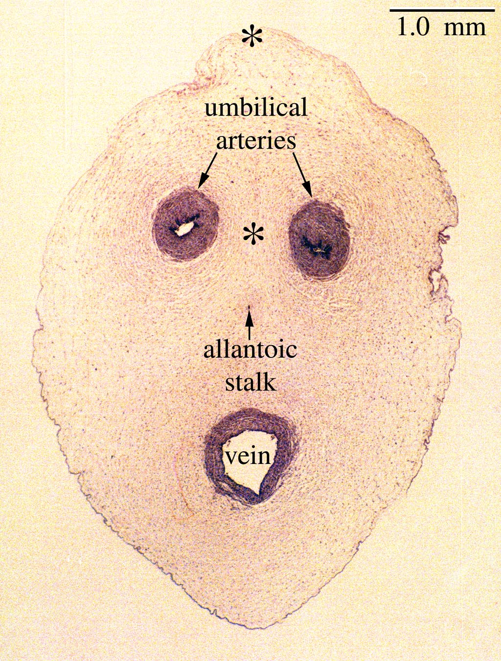Umbilical Cord Histology The gallery for -->...