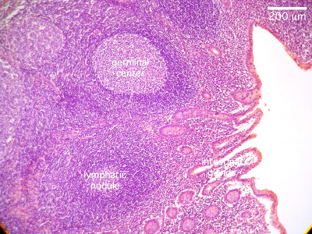 Histology Lymphatic Lab Appendix Slide