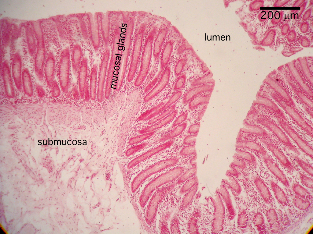 Casestudy in addition Details moreover Mucosa2 further 86 moreover 110. on faculty