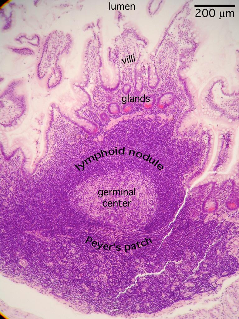 HISTOLOGY, Digestion Lab, Ileum, Peyer's patch