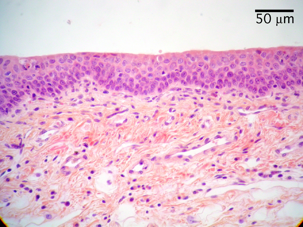 HISTOLOGY, Respiration, Epiglottis  Epiglottis Histology Labeled