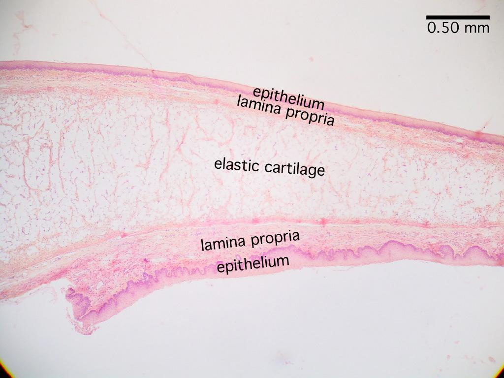 Histology respiration epiglottis pooptronica